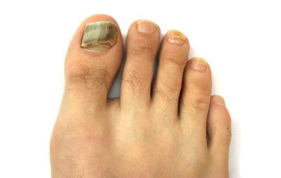 dermatologue mycose pied