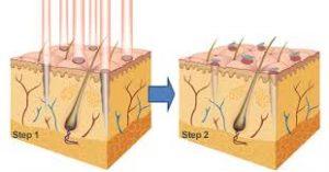 relissage-fractionnel-docteur-casacci-dermatologue-menton-nice (1)